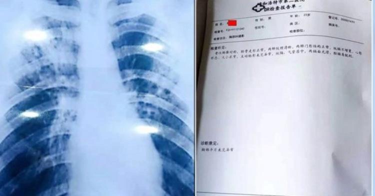 強國老師為了假期做了這種事!線上購買「假結核病診斷」曝光...引起全國人民撻伐!