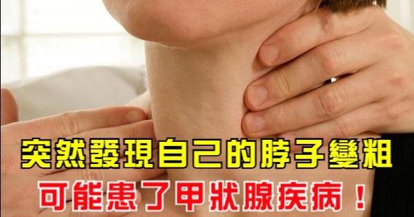 突然發現自己的脖子變粗,你可能患了甲狀腺疾病!