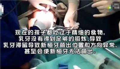 6歲女童長出「雙排牙」 原因太意外了!別讓你的孩子不小心「中招」