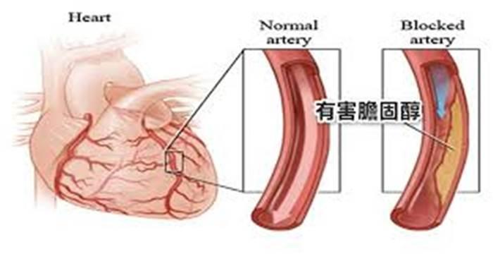 如何消滅身體裏「有害膽固醇」?名醫絕學「兩吃兩不吃」,一生遠離心血管病和肥胖!
