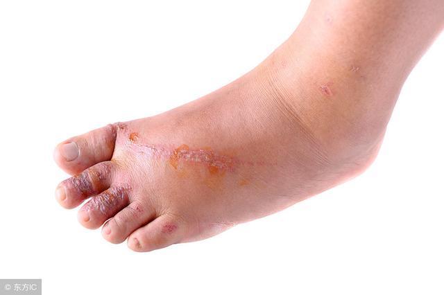 醫生:腳上出現這3種情況 暗示你血糖已經很高了 趕緊去醫院