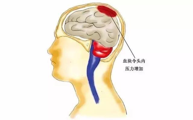 腦血管崩潰前有10個信號,大部分人都忽略了